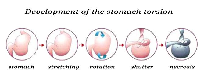 skręt żołądka